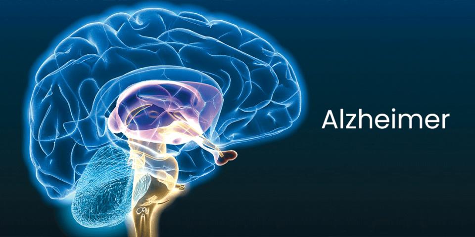 Doença de Alzheimer e os produtos de para pesquisa da doença CMS Científica